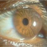 Keratoconus Conical Cornea